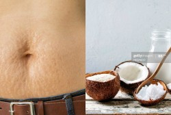 Do You Want To Get Rid Of Your Stretch marks And Achieve A Flawless Skin Like Your Favorite Korean Actress? Here's How!